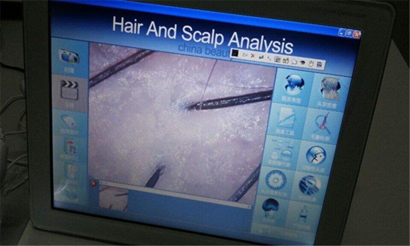 Skin Analysis machine Tingmay