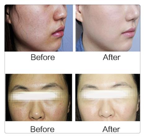 Tingmay Brand hair ultrasonic whitening ultrasonic skin scrubber